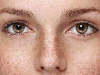 Пигментация лица: причины и способы справиться с проблемой