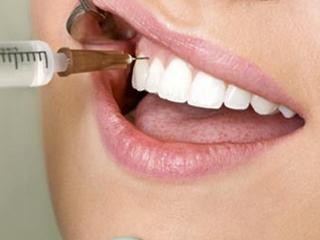 Симптомы и методы лечения пульпита зубов