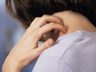 Стоит ли лечить псориаз в клинике