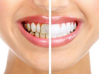 Насколько безопасно отбеливание зубов