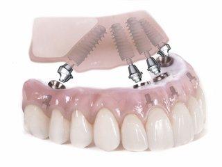 Технология ALL-ON-4 - имплантация зубов по новой методике