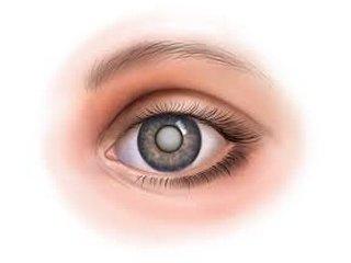 Катаракта - о чем стоит спросить офтальмолога и почему?