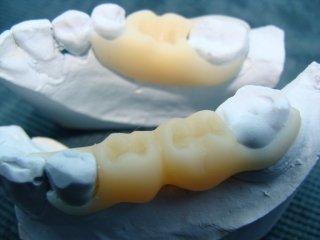 Иммедиат-протез «бабочка» – когда необходимо восстановить зубы быстро, но ненадолго